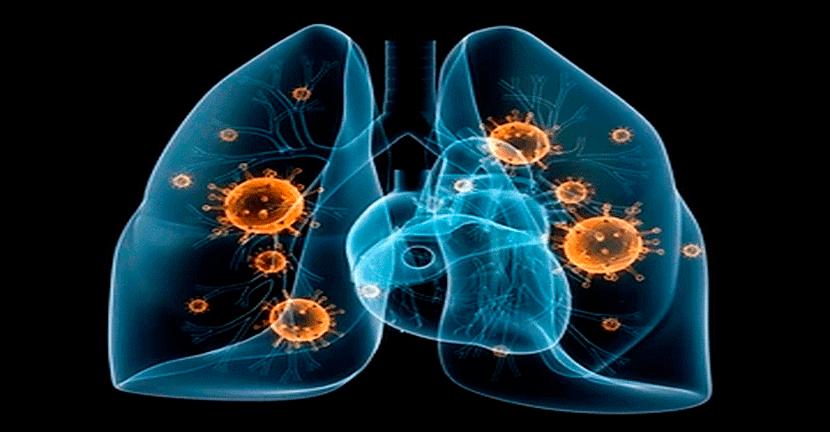 Imagen Qué implicaciones tiene el COVID-19 en pacientes con cáncer de pulmón.