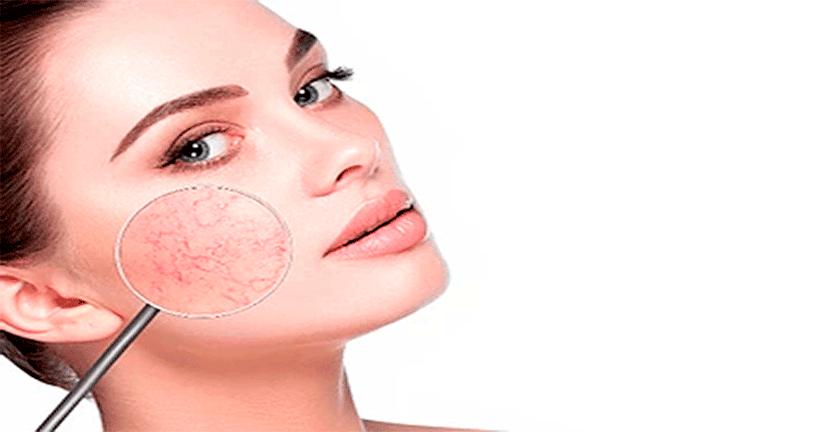 Imagen Mujeres de 30 años pueden padecer Rosácea