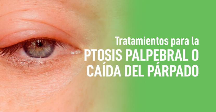 Imagen Tratamientos para la ptosis palpebral o caída del párpado