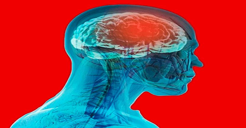 Imagen La presión alta, principal causa de derrame cerebral.