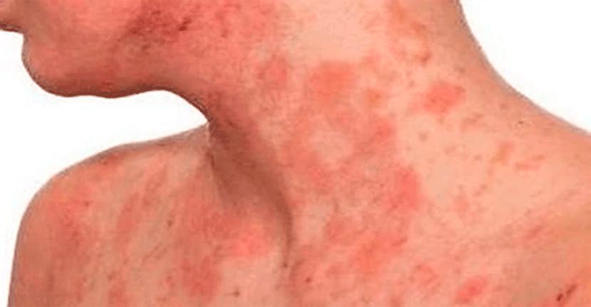 Imagen 5% de los adultos con dermatitis atópica en México presentan una enfermedad grave no controlada