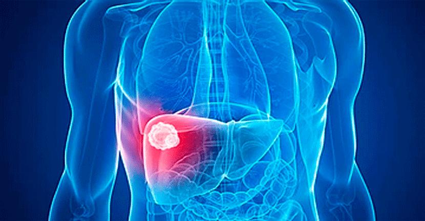 Imagen Cáncer de hígado y cáncer de páncreas, dentro de las primeras 10 causas de mortalidad