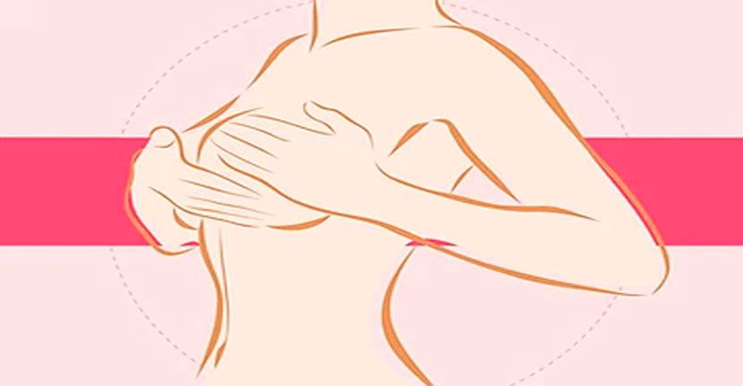 Imagen Distinguir los subtipos de Cáncer de Mama, mejora las posibilidades de tratamiento