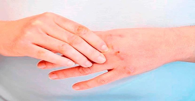 Imagen El impacto de la cuarentena por Covid-19 en nuestra piel