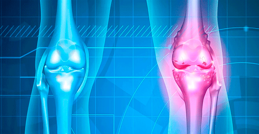 Imagen Síntomas de la artrosis