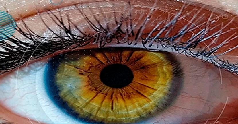 Imagen ¿Qué es el Glaucoma?