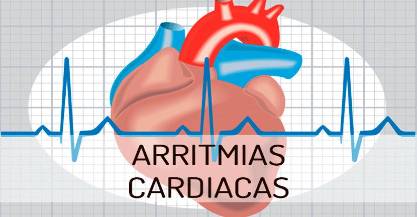 Imagen Arritmias cardiacas