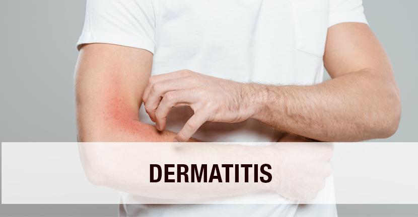 Imagen Dermatitis