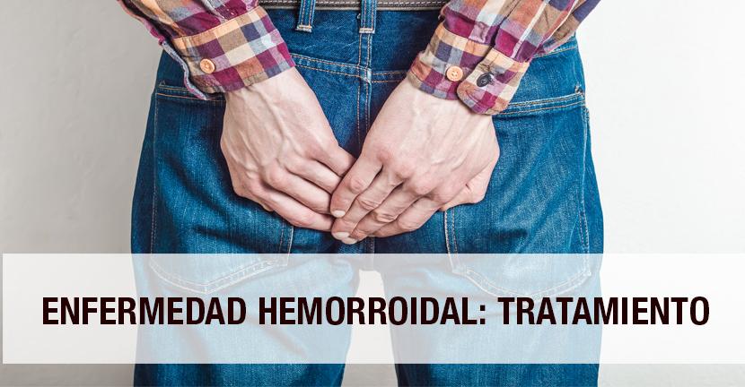 Imagen Enfermedad hemorroidal: tratamiento
