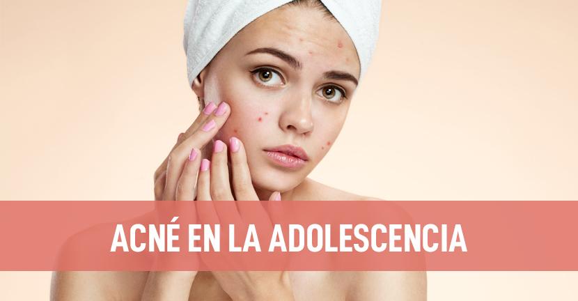 Imagen Acné en la adolescencia