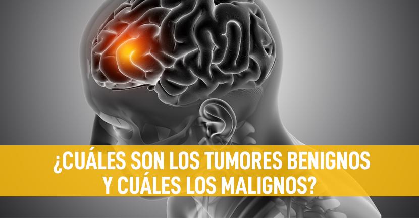 Imagen ¿Cuáles son los tumores benignos y cuáles los malignos?