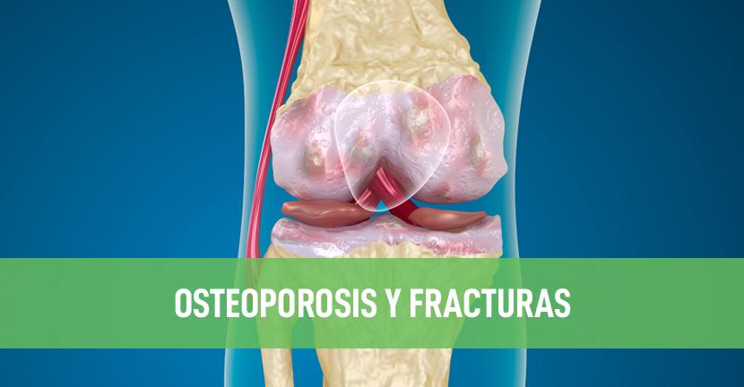 Imagen Osteoporosis y fracturas