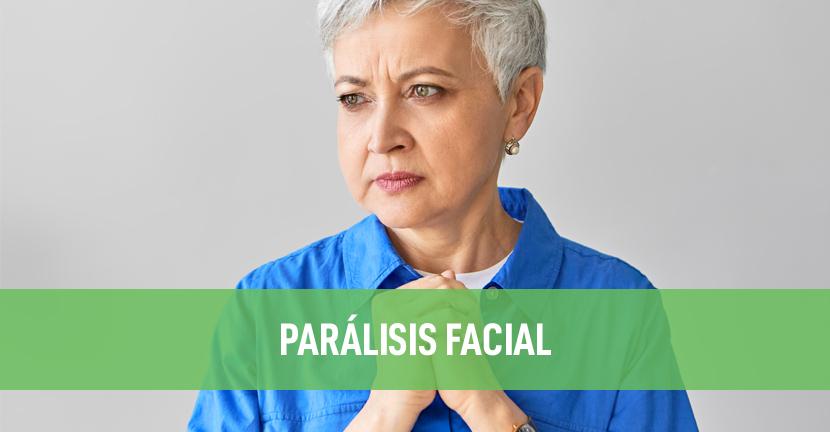Imagen Parálisis facial