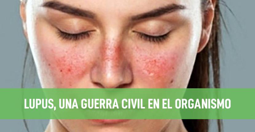 Imagen Lupus eritematoso sistémico