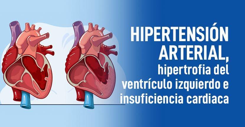 Imagen Hipertensión arterial, hipertrofia del ventrículo izquierdo e insuficiencia cardíaca