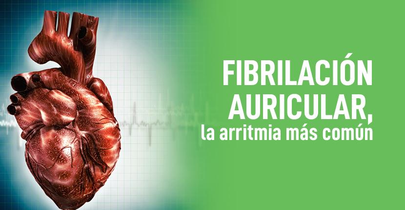 Imagen Fibrilación auricular, la arritmia más común