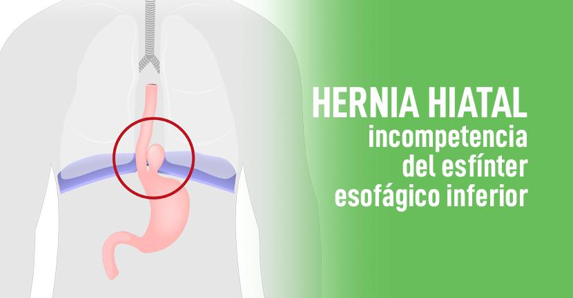 Imagen Hernia hiatal, incompetencia del esfínter esofágico inferior
