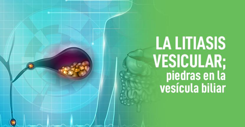 Imagen La litiasis vesicular, piedras en la vesícula biliar