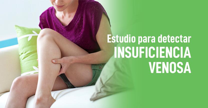 Imagen Estudio para detectar insuficiencia venosa.