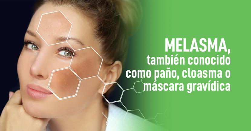 Imagen Melasma, también conocido como paño, cloasma o máscara gravídica