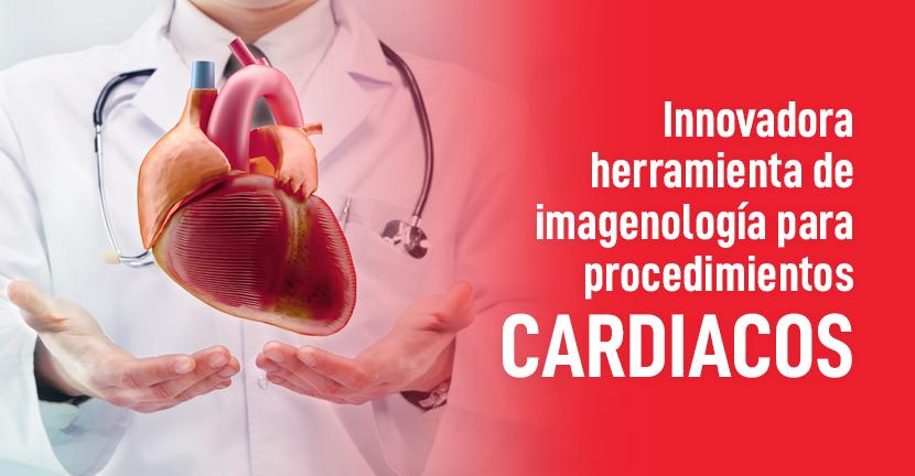 Imagen del artículo Innovadora herramienta de imagenología para procedimientos cardiacos