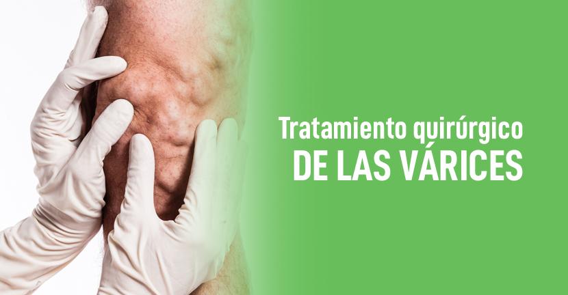 Imagen Tratamiento quirúrgico de las várices