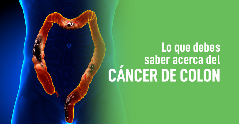 Imagen Lo que debes saber acerca del cáncer de colon