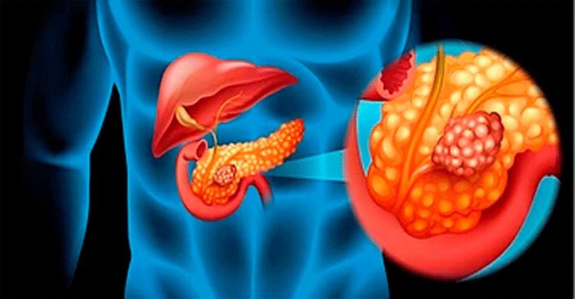 Imagen Cáncer de Páncreas crear conciencia para una detección temprana y oportuna